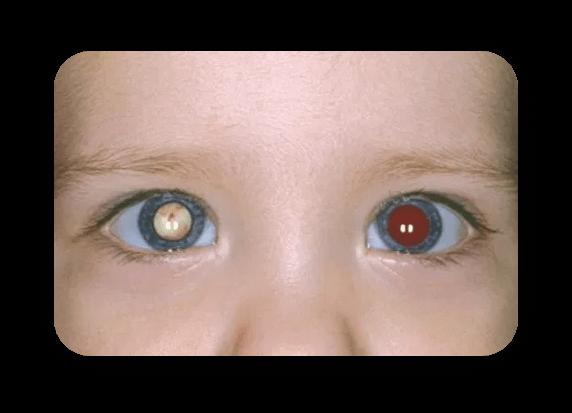 Bebê com teste do reflexo vermelho